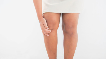 knee pain due to obesity. Banque d'images