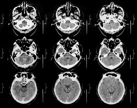 ct scan: Brain x-ray scan film