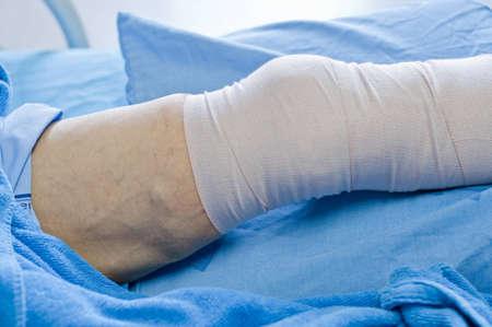 fractura: hombre con una herida en la pierna, acostado en la cama.