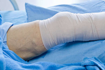 man with a leg wound, lying on the bed.