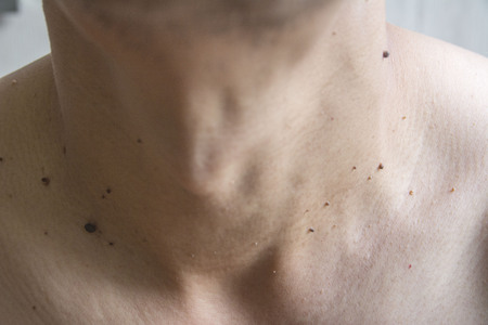 tumors: Mole on mens skin