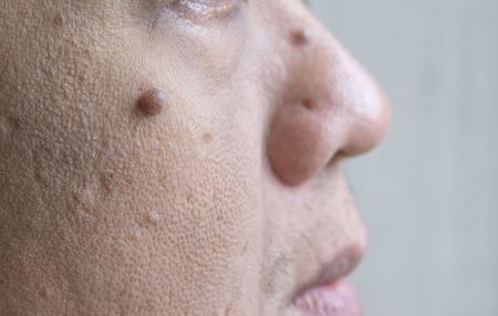 Mole on white men skin face
