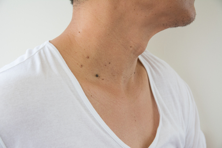 Mole on Asian men skin