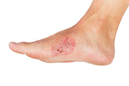 Wounds and dry skin on human foot. Ulcers and infection of medical concepts.
