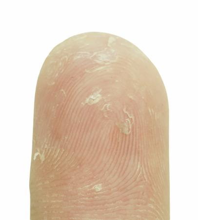 deficient: Hand-peeling