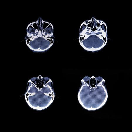 X-ray scanner of head background. Archivio Fotografico - 119057823