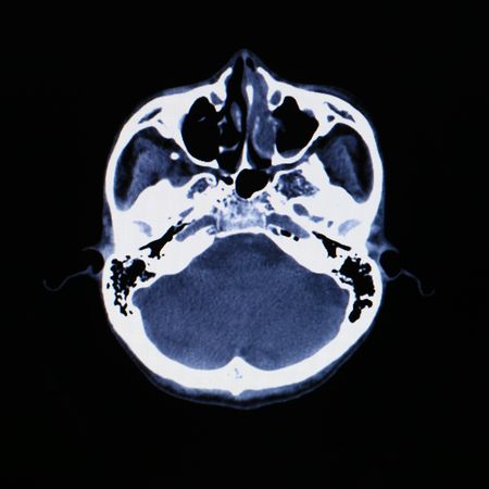 X-ray scanner of head background. Stock Photo