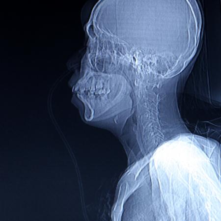 X-ray scanner of head background. Archivio Fotografico - 119057829
