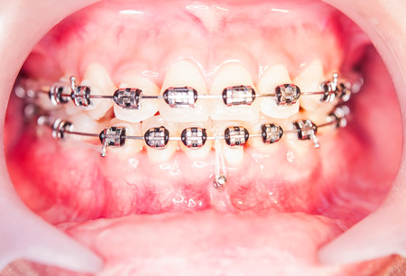 Close-up orthodontics braces with miniscrew  photo