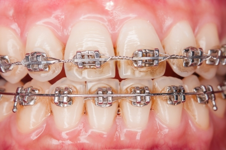Close-up Orthodontic braces with o-ring Stock Photo