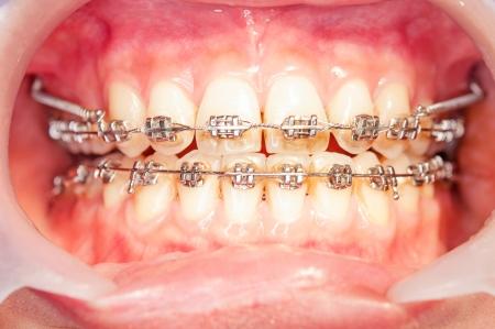 Close-up orthodontics braces with miniscrew.