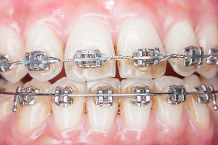 dental calculus: Close-up orthodontics teeth with stains. Stock Photo