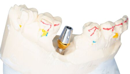 incisor: Dental Prothetic laboratory, technical shots on white background.