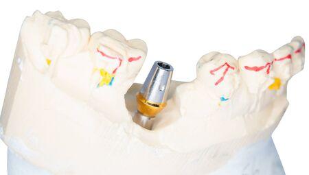 prothetic: Dental Prothetic laboratory, technical shots on white background.