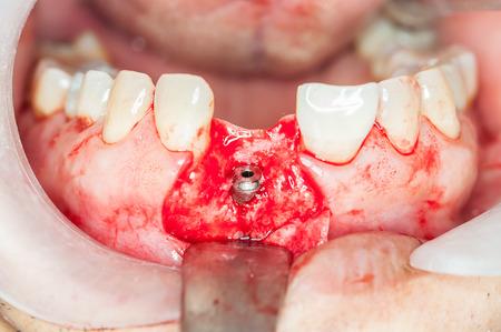 Zahnimplantate Chirurgie in realen Patienten Standard-Bild - 40782590