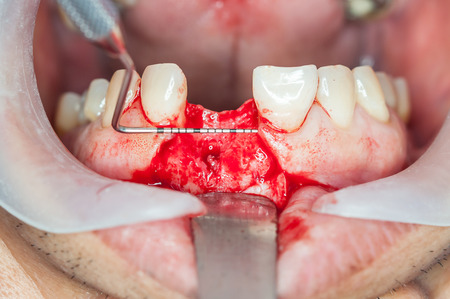 implantology: Dental implants surgery in real patient