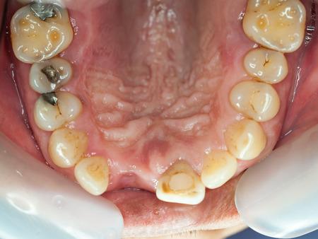 Chirurgie des implants dentaires en vrai patient