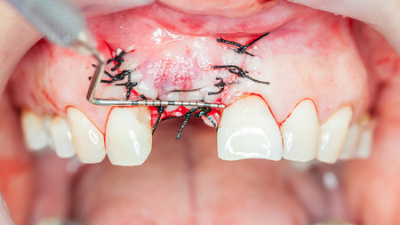implants: Dental implants surgery in real patient