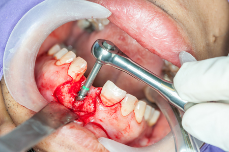 Dental implants surgery in real patient