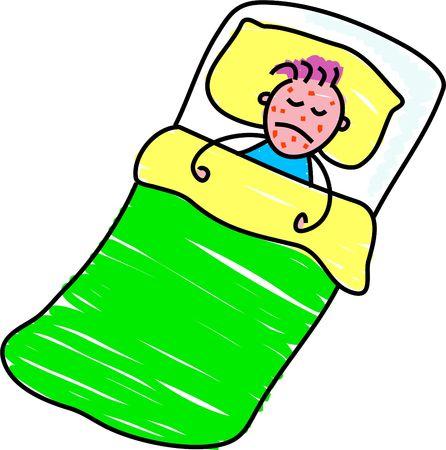 varicela: peque�o enfermo del muchacho en cama con la varicela Foto de archivo
