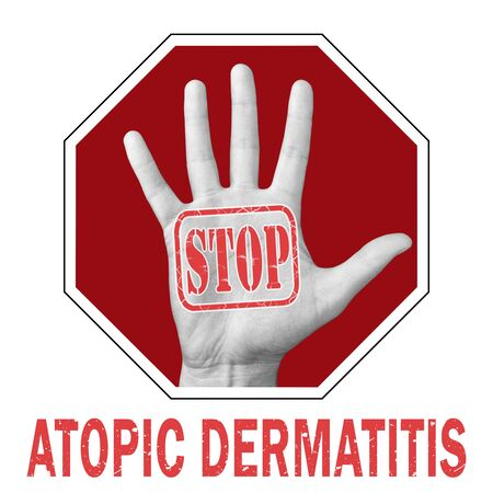 Stop atopic dermatitis conceptual illustration. Open hand with the text stop atopic dermatitis. Dermatological Diseases