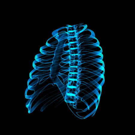Thoracic spine X-rays under 3d image photo