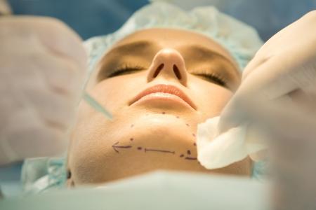 nasen: Close-up der Patienten Kinn mit Marken vor dem Betrieb Lizenzfreie Bilder