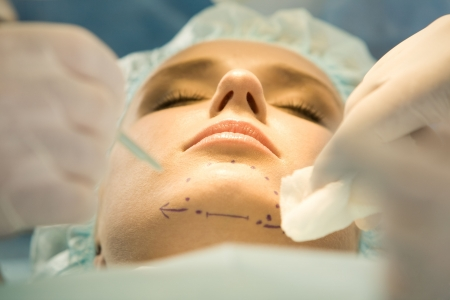 Close-up of patient's chin with marks before operation