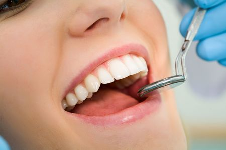 Close-up of patient's open mouth before oral inspection with mirror near by photo