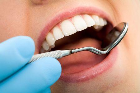 higiene bucal: Close-up de las mujeres con la boca abierta durante el examen oral a los odont�logos Foto de archivo