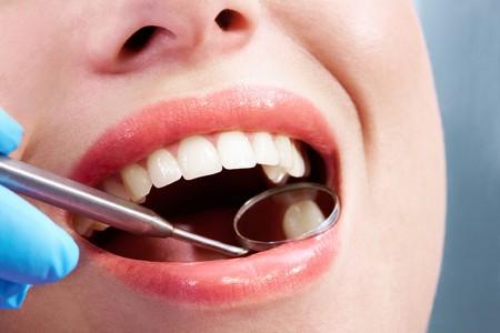 boca abierta: Close-up de boca abierta durante el chequeo oral en la dentist?s