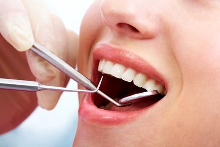 boca abierta: mujer boca abierta durante la inspecci�n oral con espejo y gancho Foto de archivo