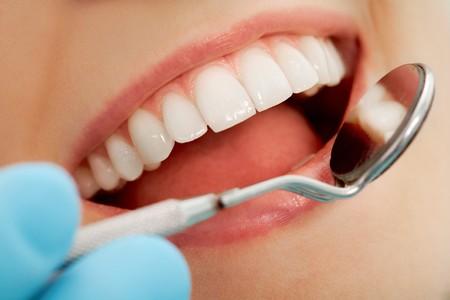 Close-up of patient?s abrir la boca durante el chequeo oral con espejo cerca por