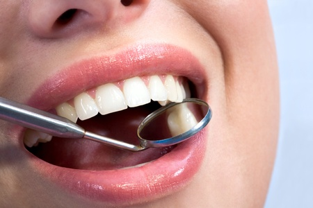 Close-up of female with open mouth during oral checkup at the dentist's Stock Photo - 8455121