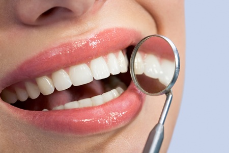 Close-up of patient's healthy smile with mirror near by photo