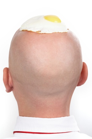 metaphorical: Rear view of male's bald head with fried eggs on it  Stock Photo