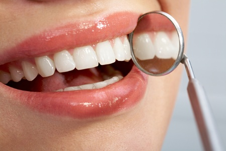 teeth whitening: Close-up of patient�s healthy smile with mirror near by Stock Photo