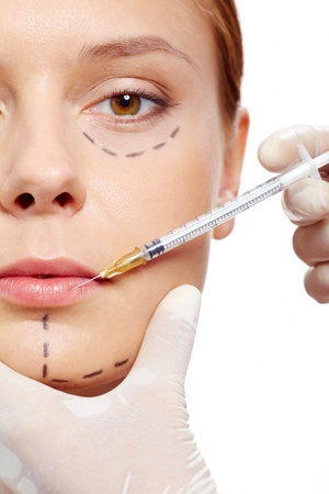 nariz: Mujer fresca con marcas dibujadas en el rostro durante el procedimiento de botox Foto de archivo