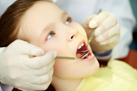 mouth opened: Patient with opened mouth being examined by a dentist