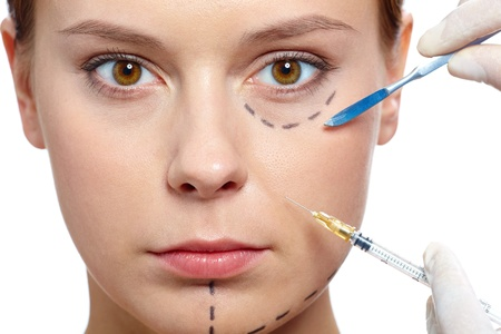 surgical needle: Fresh woman with marks drawn on face during botox procedure