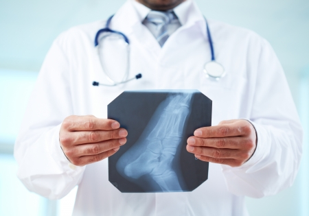 Close-up of doctor holding x-ray of human foot Stock Photo - 19705033