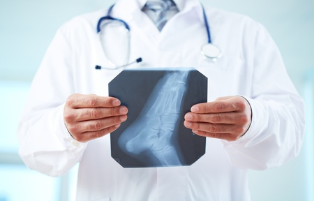 foot doctor: Close-up of doctor holding x-ray of human foot Stock Photo