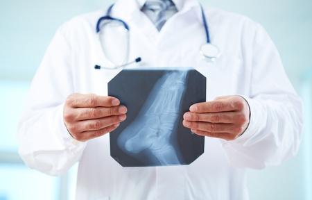 pies masculinos: Primer plano de la radiograf�a del pie humano m�dico celebraci�n