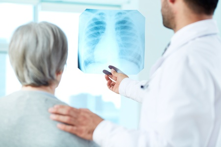 Image of senior patient and doctor looking at x-ray in hospital photo