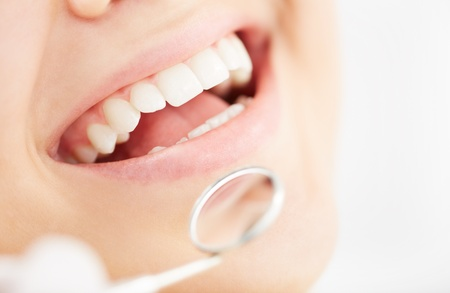 caries dental: Primer plano de la boca abierta durante el chequeo oral en el dentista Foto de archivo