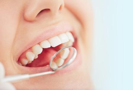 an open mouth: Abra la boca de la mujer durante la comprobaci�n de los dientes