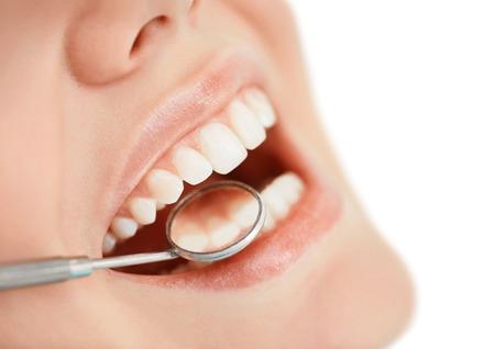 dentista: Abra la boca humana durante el chequeo oral en el dentista