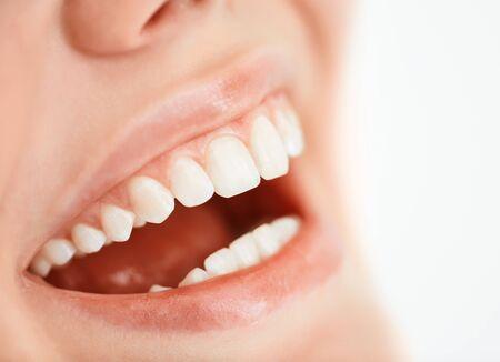 dientes con caries: Sonrisa con dientes de una mujer joven Foto de archivo