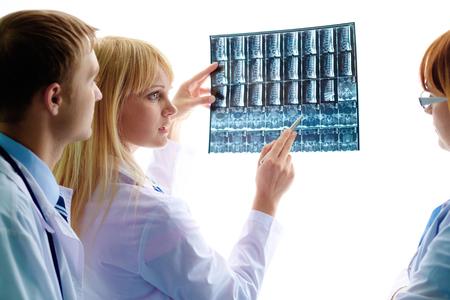 Doctors discussing x-ray of broken bone photo