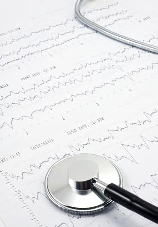 Stethoscope on real EKG  photo